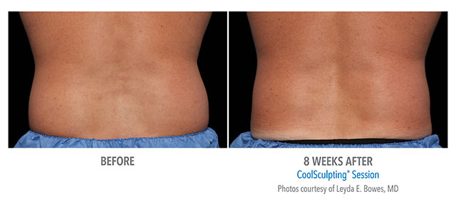 Before and After Men's Coolsculpting